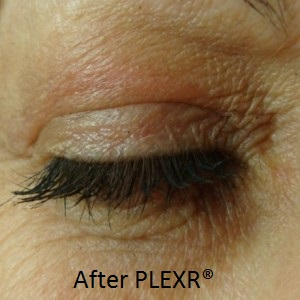 AMON-eye-plexr-after-300x300