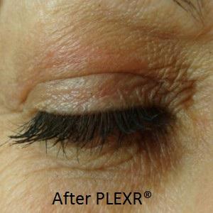 AMON-eye-plexr-after-300x300