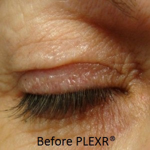 Amon-eye-plexer-before-300x300
