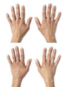 hand before 2