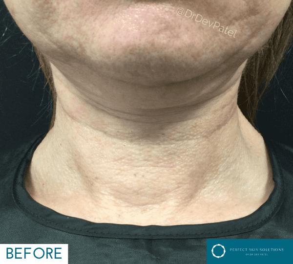 Morpheus8 on neck by Dr Dev Patel