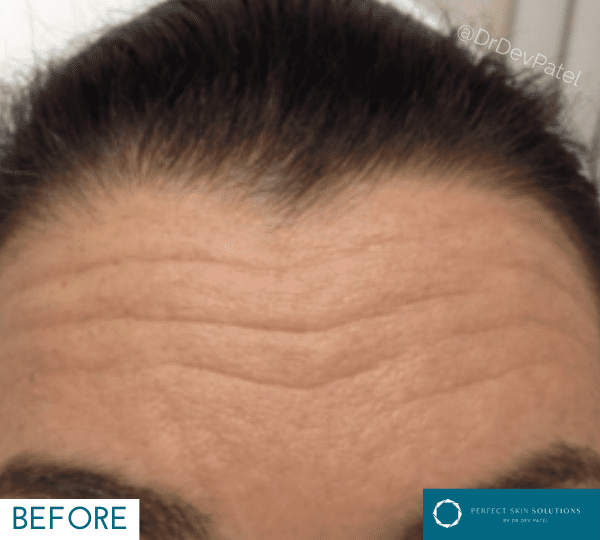 Botox forehead injections with a woman.