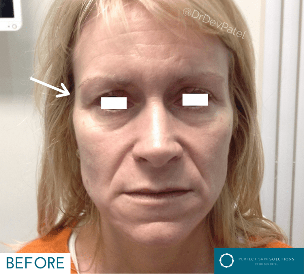 Temple fillers before and after image