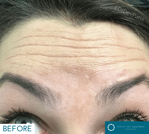 A woman with botox injections
