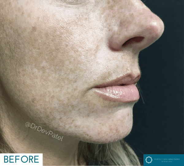 Lumecca before image to get rid of freckles