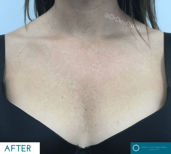 Lumecca treatment on sun damage